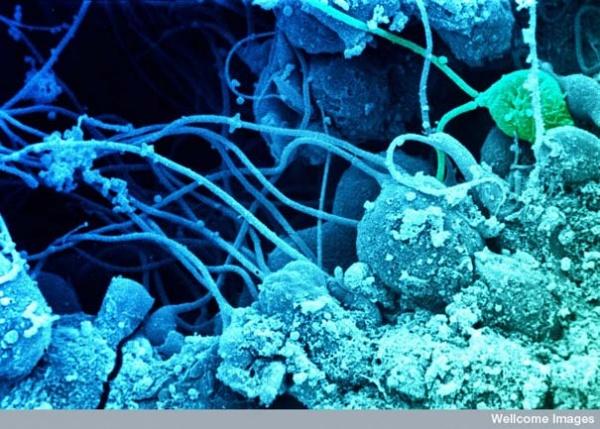 Сперматозоид на поверхности яйцеклетки