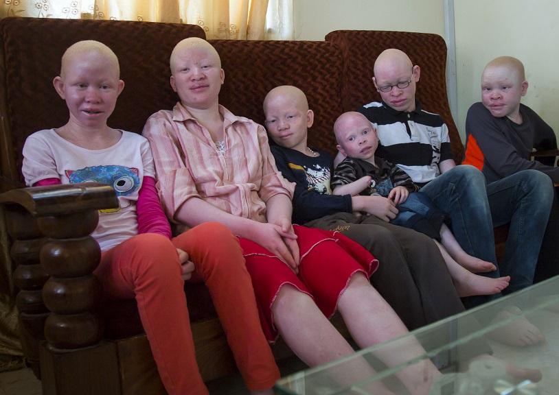Дети и подростки, живущие в заведении для альбиносов, Танзания.