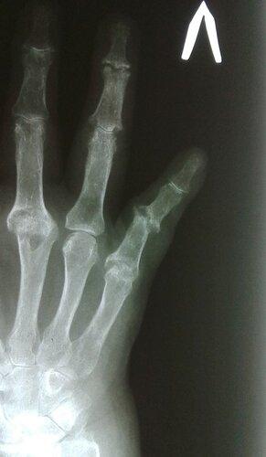 Ревматоидный артрит кистей | Rentgenolog.info