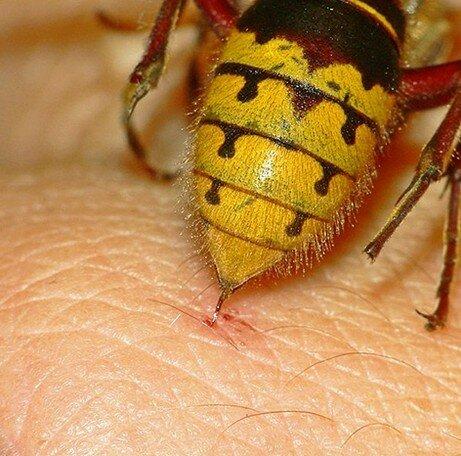 Укус пчелы обратил мужчину в женщину
