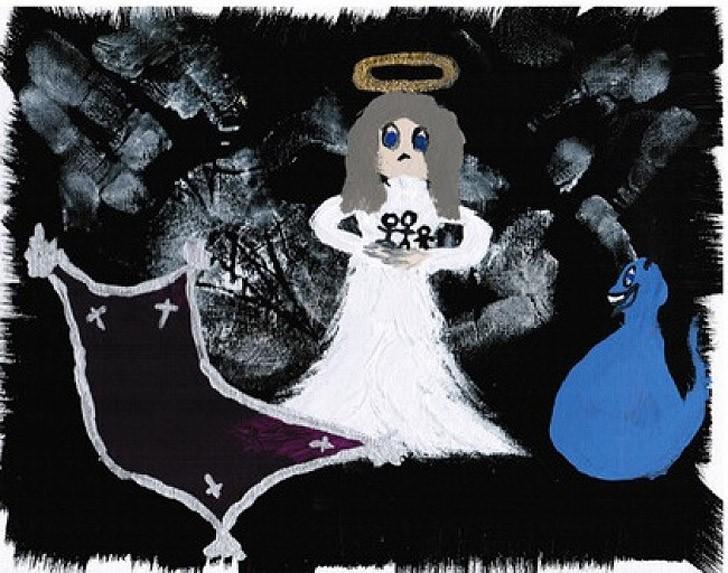 19. Кэси родилась с синдром Ретта — умственная отсталость, встречающаяся только у девочек. В 14 меся