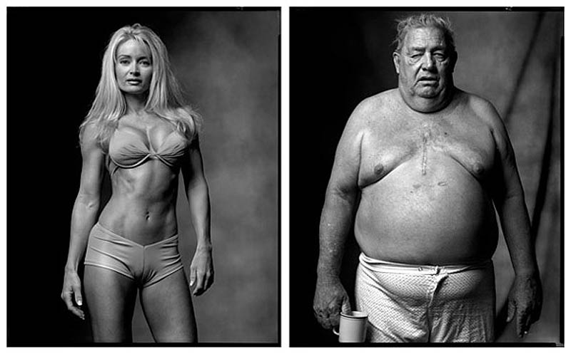 16. Фитнес-модель / Пациент, перенесший операцию на сердце, 2002/2005 гг.