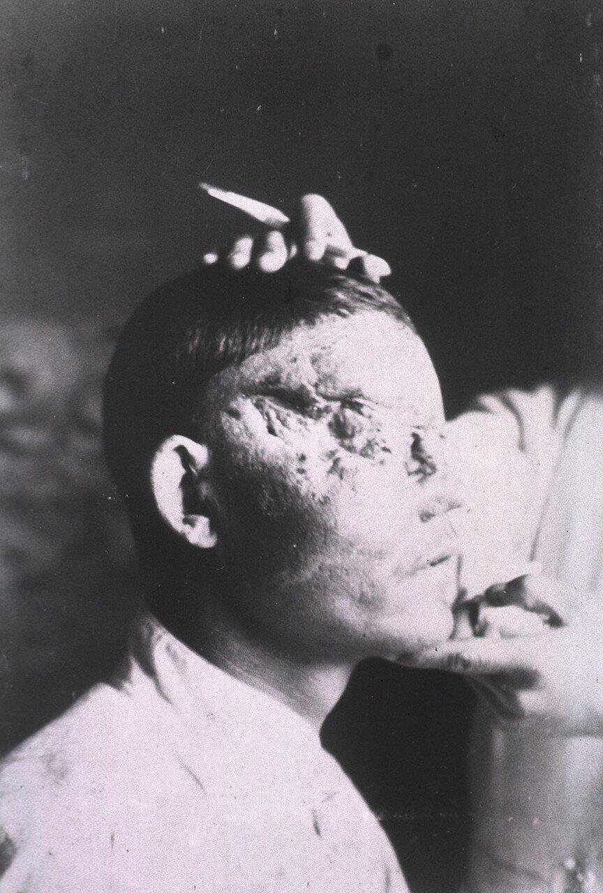 Рана покрывает правую сторону лица пациента в области глаз