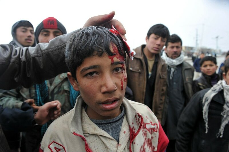 A wounded Afghan boy stands at the gate