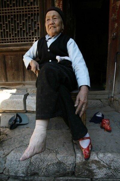 31679666_UncomfortableShoes4.jpg