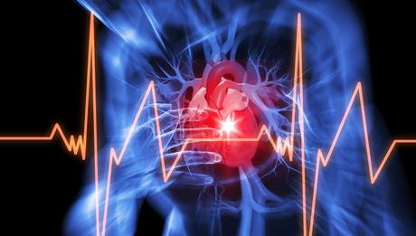 Ученые нашли способ снизить риск инфаркта