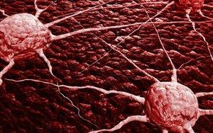 Ученые научились отделять раковые клетки от крови