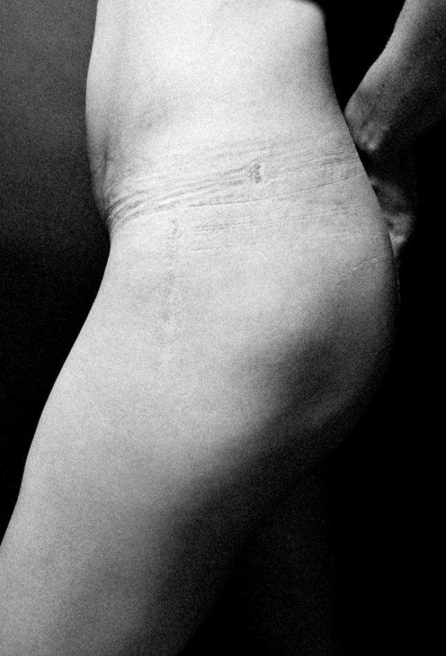 Вот что скрывается за женским великолепием. На эти фото даже больно смотреть!