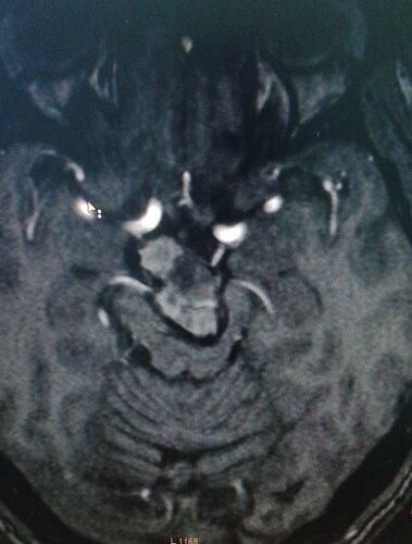 Аневризма основной артерии головного мозга | Rentgenolog.info