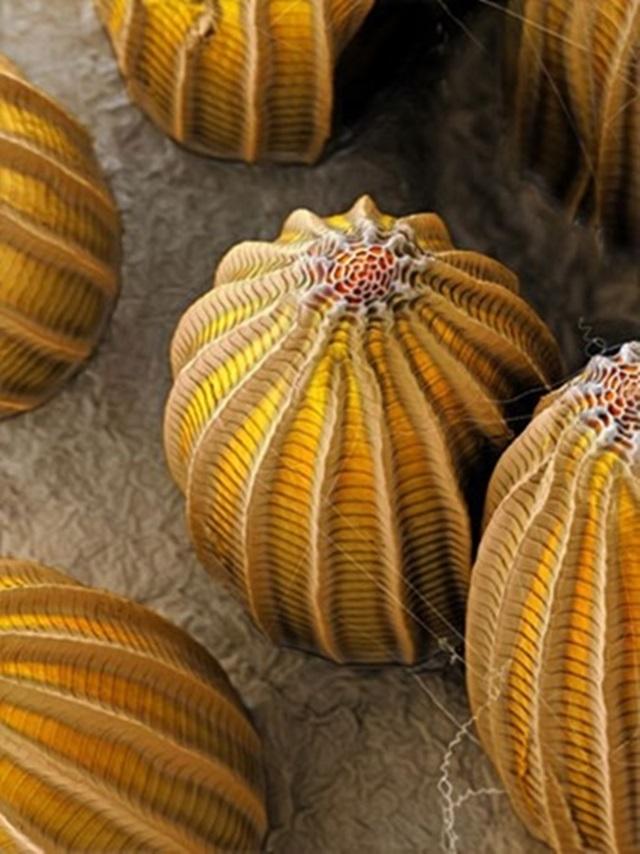 Яйца насекомых под электронным микроскопом   потрясающие фотографии!