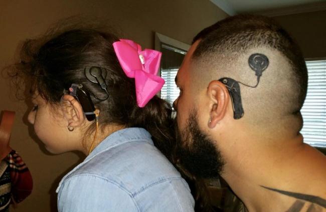 © imgur.com  Этой девочке был вживлен кохлеарный имплантат, который помогает ейслышать. Ачто