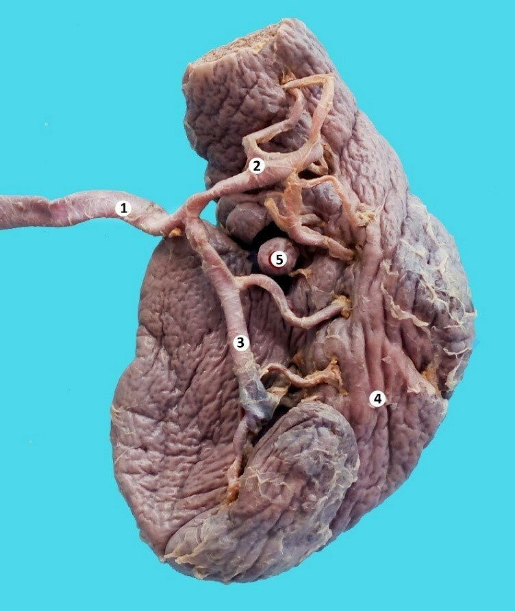 Accessory Spleen A Report Of Anatomical Cases Russian Open