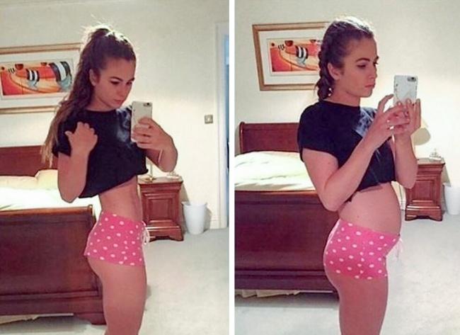 Винстаграме появился новый тренд: девушки доказывают, что идеальных фигур несуществует
