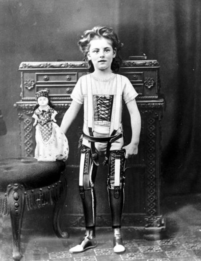 27. Протезы, Великобритания, ок. 1890 года.