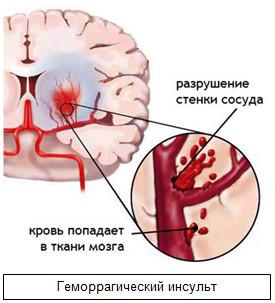 29 октября. Всемирный день борьбы с инсультом. Здоровья!