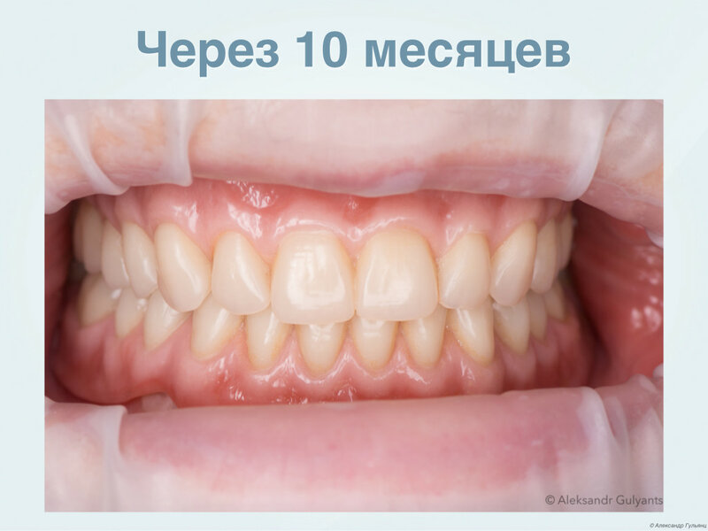 0_192b21_1a499d1e_XL.jpg