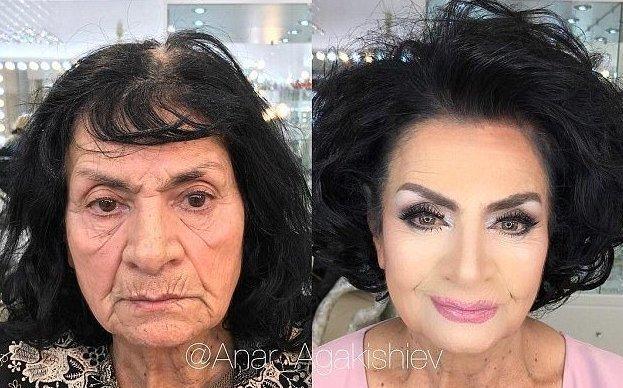 Некоторым клиенткам Агакишиева — например, этой женщине, — уже за 80. Но, глядя на них п