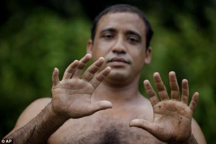 24 пальца, шесть пальцев, куба, болезнь, заболевание, эрнандес гарридо