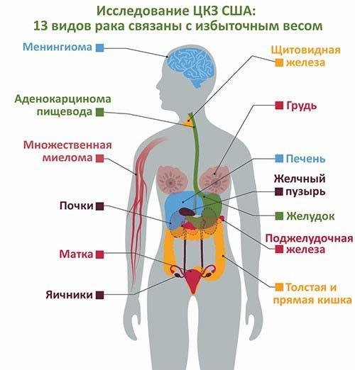 возникновение 13 видов рака