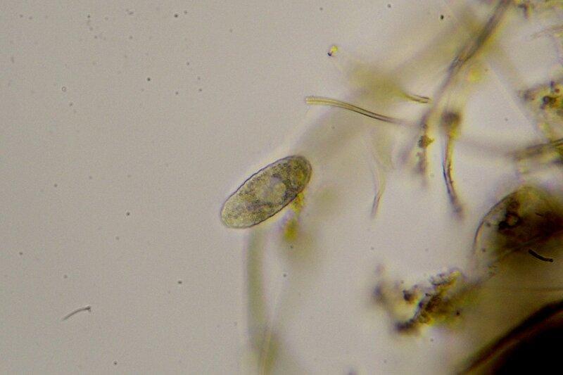 Инфузория? Капля болотной воды под микроскопом: одноклеточные и многоклеточные организмы, инфузории с ресничками, водоросли со жгутиками, простейшие