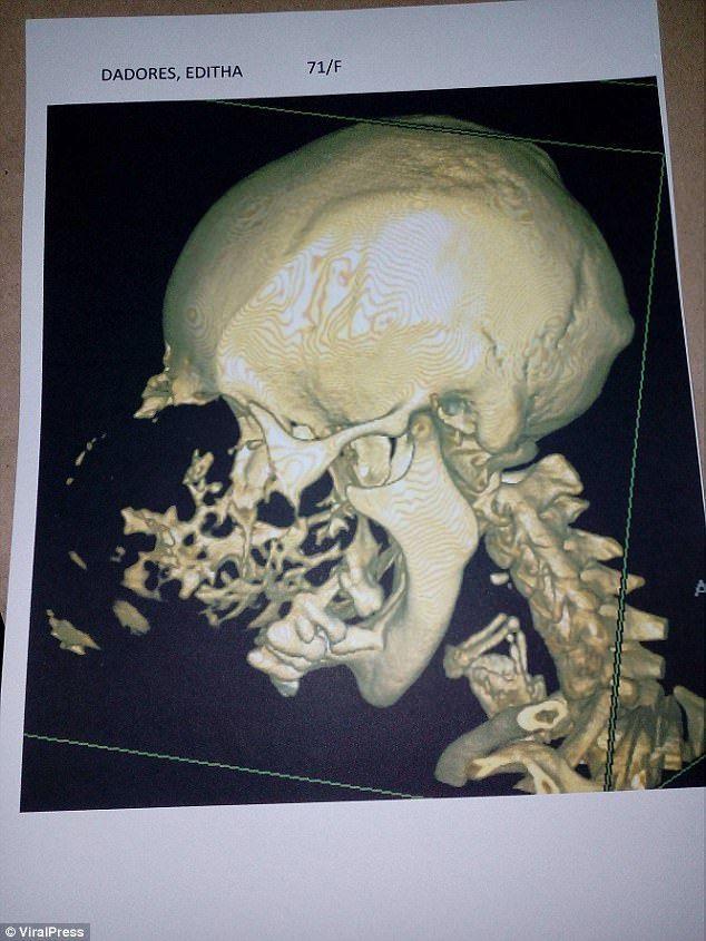 Опухоль разрушает череп пожилой филлипинки (3 фото)