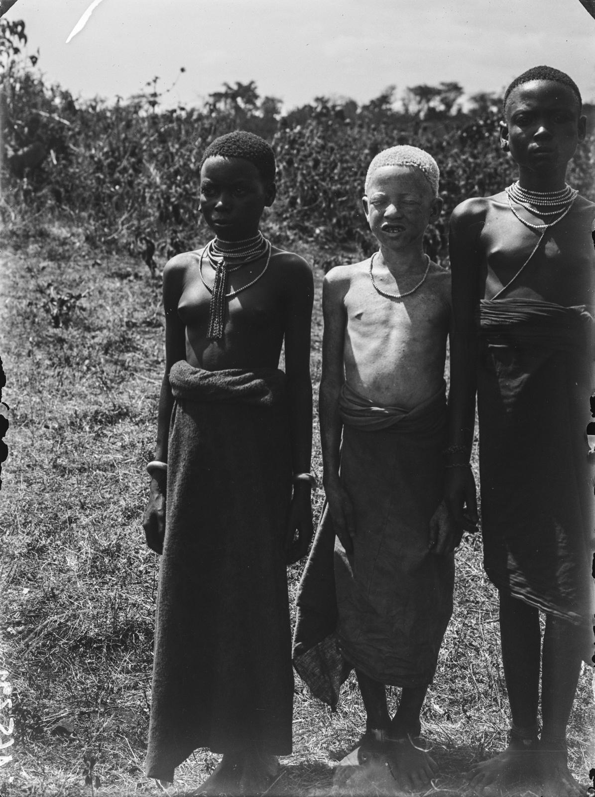 316. Две девочки и мальчик чагга, страдающий альбинизмом