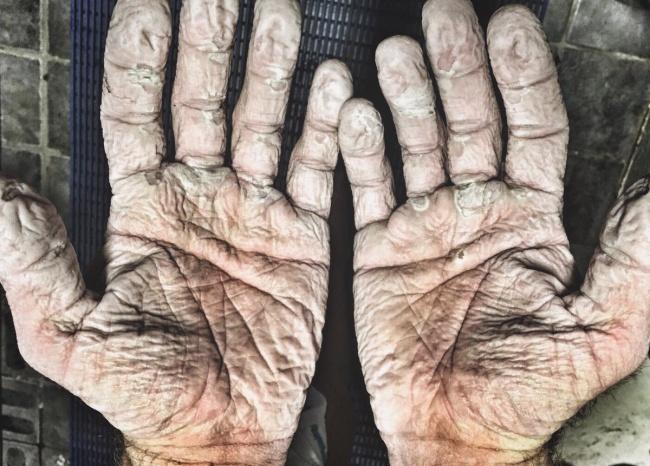 © alexgregorygb / twitter     Так выглядели руки британского гребца, двукратного олимпийс