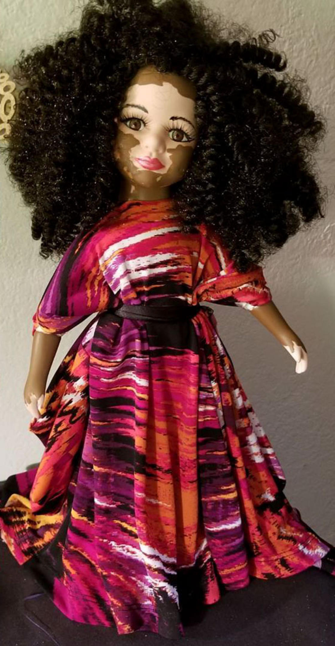 She creates vitiligo dolls to help children with this skin condition