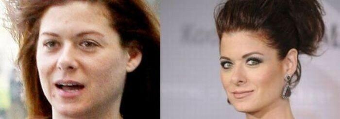 Просто красавица! Как пухлые губы преобразовали Кайли Дженнер из семейства Кардашян
