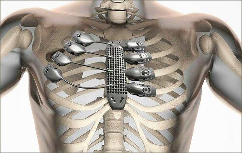 Вместо изъятой части грудной клетки на 3D-принтере изготовили титановый имплант