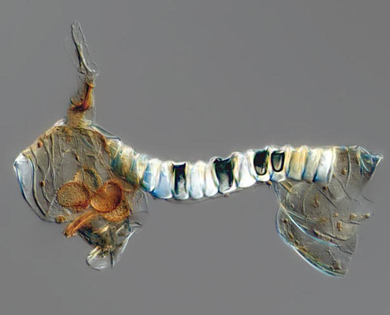 8. Спора папоротника (увеличение х20). Фото сделано в институт Филадельфии. (FREDERICK KEENEY / BARC