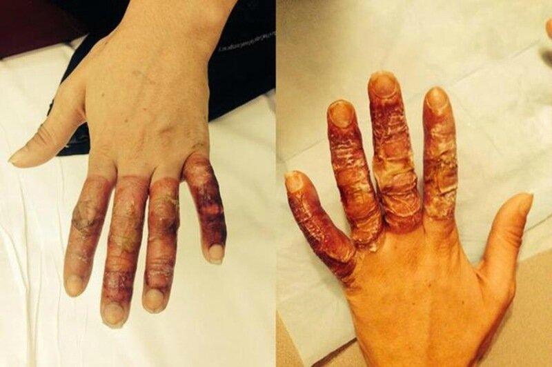 Страшные фото пьяной австралийки, которая обморозила руки в Канаде
