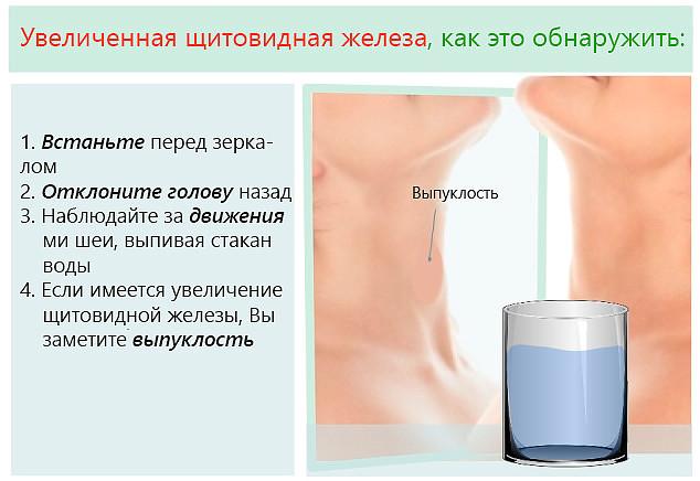 Как в домашних условиях определить заболевания щитовидной