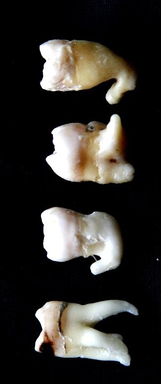 самых странных зубов,
