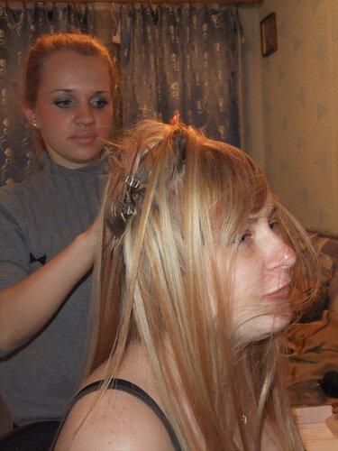 Выпадение волос у женщин при заболевание щитовидной железы