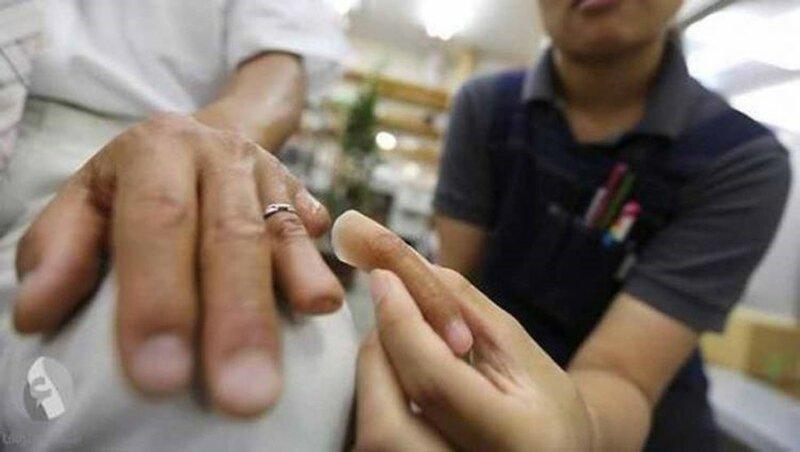 Протезирование отрезанных пальцев для японской Якудзы 0 13c098 73eefbd6 XL