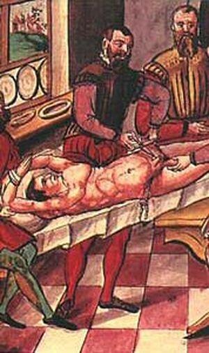 На пример Чехии, где также разрешена хирургическая кастрация. Со врем…