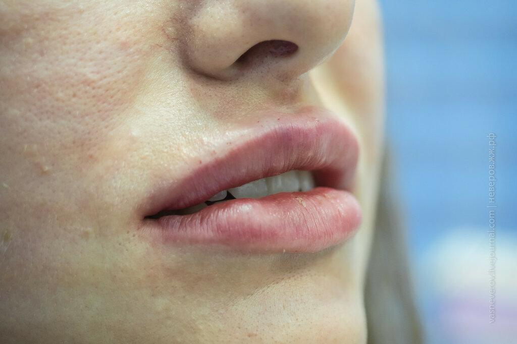 гиауроновая кислота инъекции губы клиника