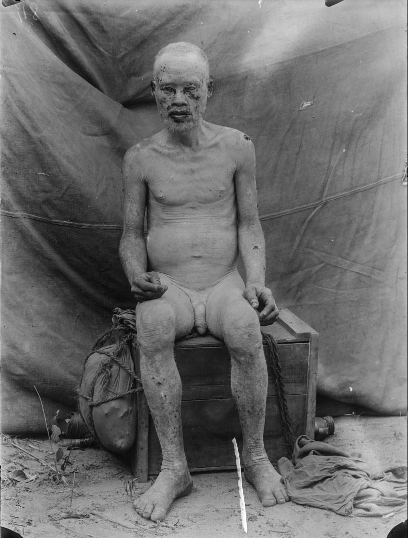 63. Антропометрическое изображение альбиноса
