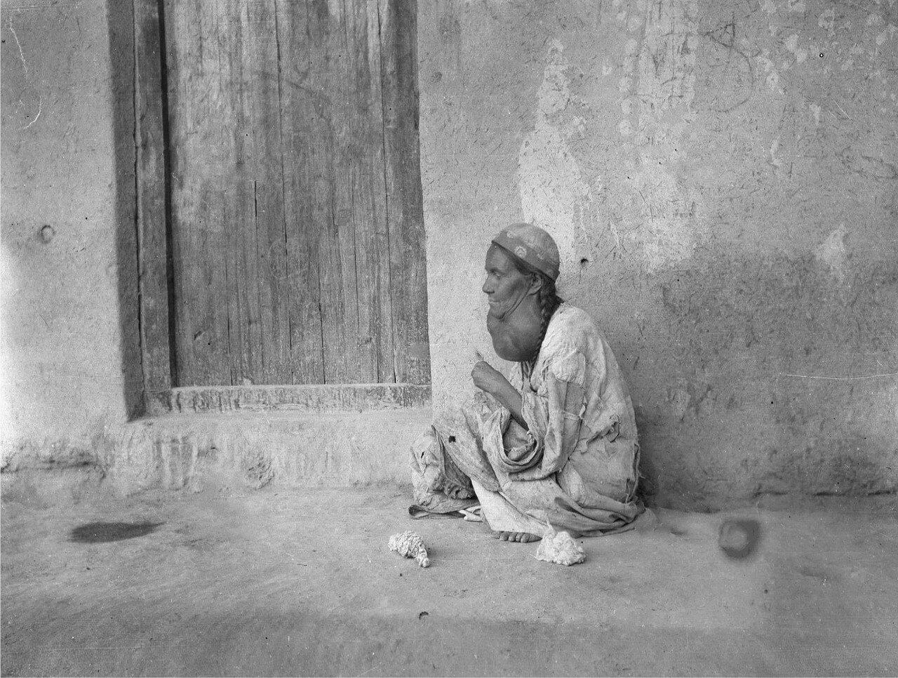 Женщина с зобом возле богадельни
