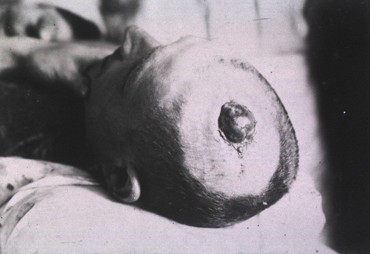 Вид открытой раны в верхней части головы