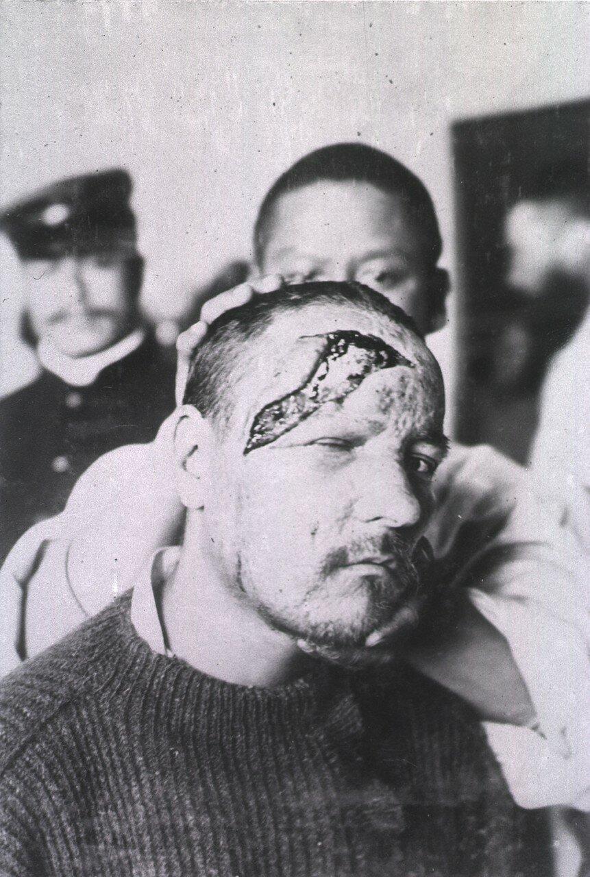Открытая рана простирается от лба пациента до его правого уха