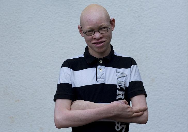 На 14-летнего Адама Роберта напали с мачете. Ему повредили три пальца. Адам остался жив и сказал пол