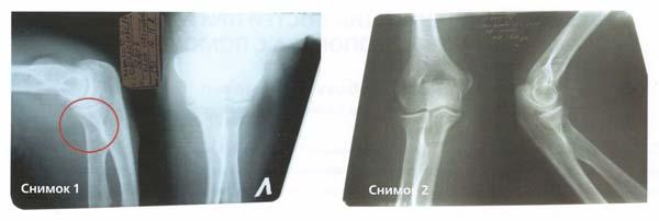 Лечение перелома кости с КФС