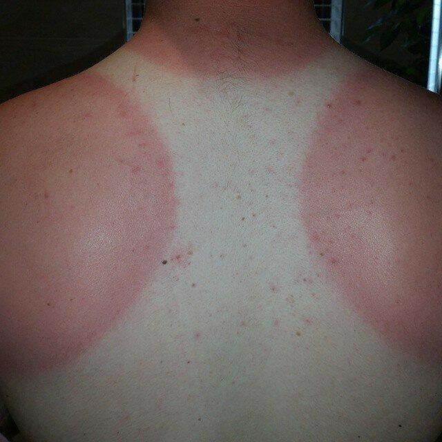 солнцезащитные-средства-польза-вред.jpg