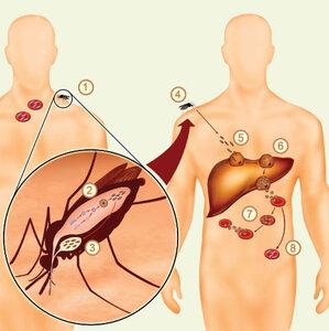 Отмечаем День борьбы с малярией - статистика болезни пугает