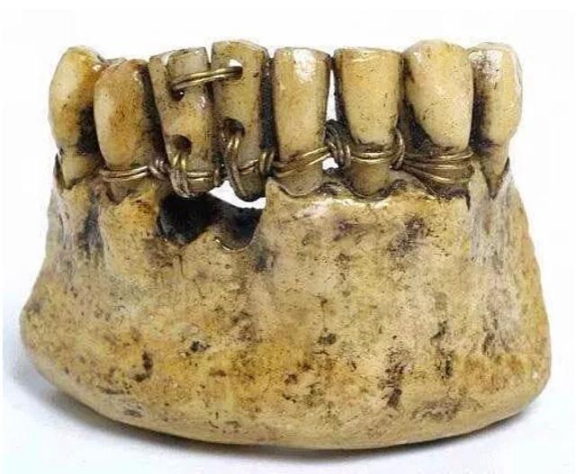 Как в прошлом делали зубные протезы.