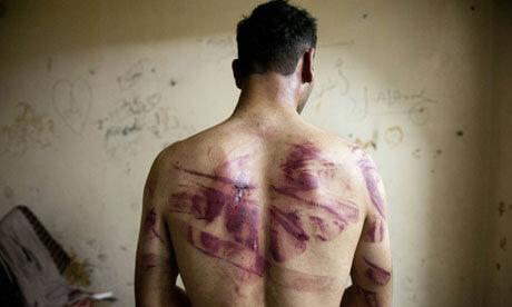 Torture christian