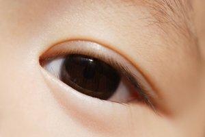Проблема: у ребенка непроходимость слезного канала
