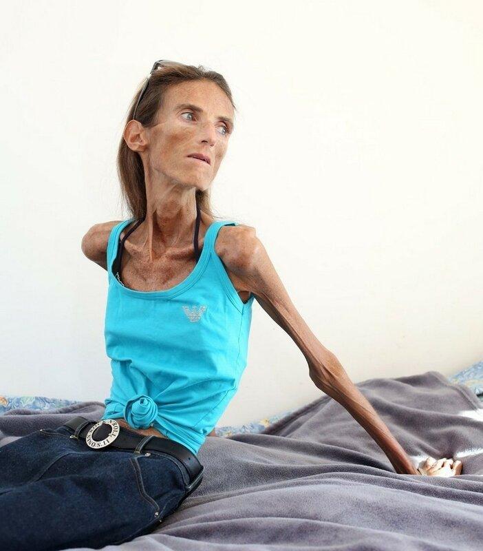 Самая худая в мире женщина